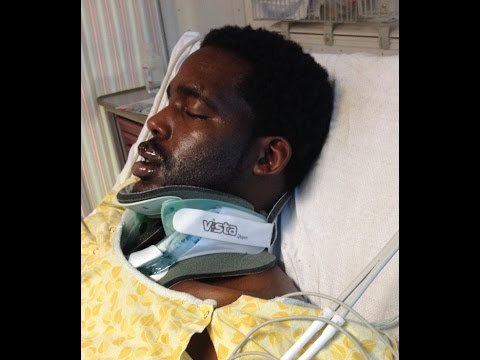 Man Injured After E-Cigarette Explodes In His Face @Hodgetwins