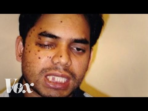 Thumbnail: This Muslim American was shot after 9/11. Then he fought to save his attacker's life