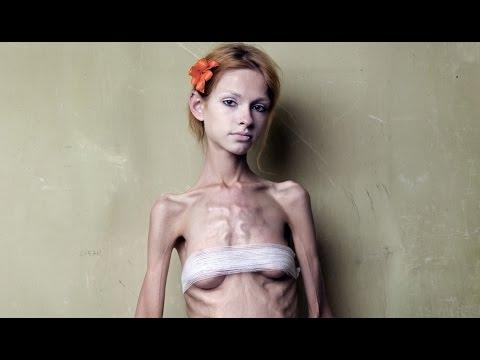 Как лечить анорексию. Школа здоровья. Gubernia TV