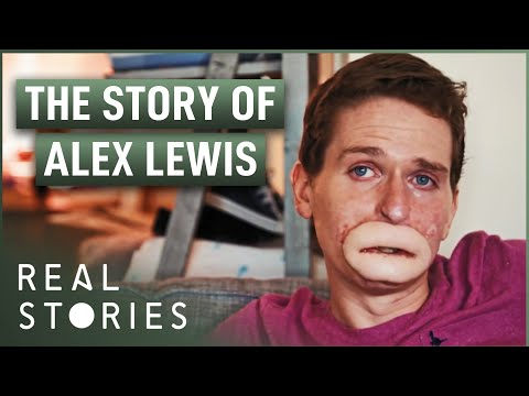 The Extraordinary Case Of Alex Lewis (Miracle Documentary) | Real Stories