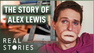 The Extraordinary Case of Alex Lewis (Medical Miracle Documentary) - Real Stories thumbnail