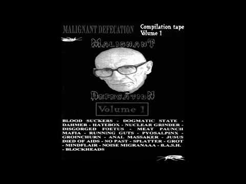 V/A - Malignant Defecation Compilation Vol. 1 - Full Tape