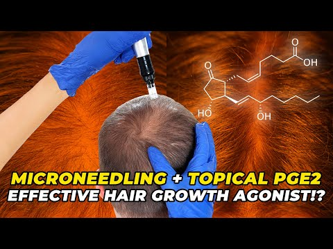 microneedling-topical-pge2-–-the-most-effective-hair-growth-agonist?