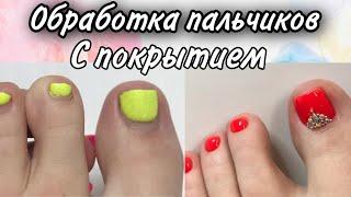 ЗАКРУЧИВАЮЩИЕСЯ НОГТИ как обработать ногти педикюр как сделать себе педикюр гель лак