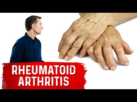 use-these-spices-and-herbs-for-rheumatoid-arthritis