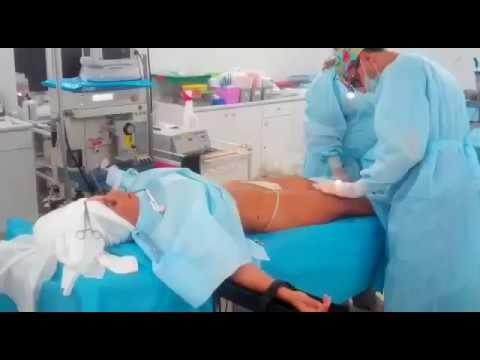 Операция писек гр 2