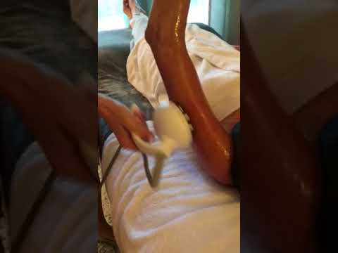 Venus Freeze for skin tightening of the arms