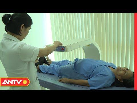 Báo động tình trạng loãng xương ngày càng trẻ hóa | SKMN | ANTV