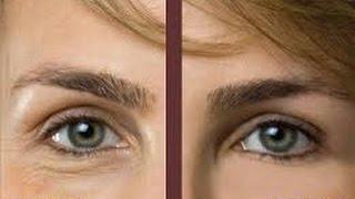 Olhos reduz os as vitamina sob olheiras da c o soro
