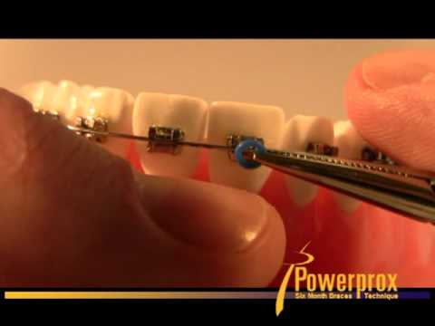 How To Tie An O Ring Elastic Powerprox Six Month Braces