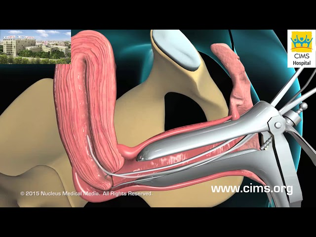 Endometrial Biopsy (Hindi) - CIMS Hospital