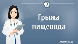 видео Грыжа пищевода: симптомы и лечение, диета, народные средства