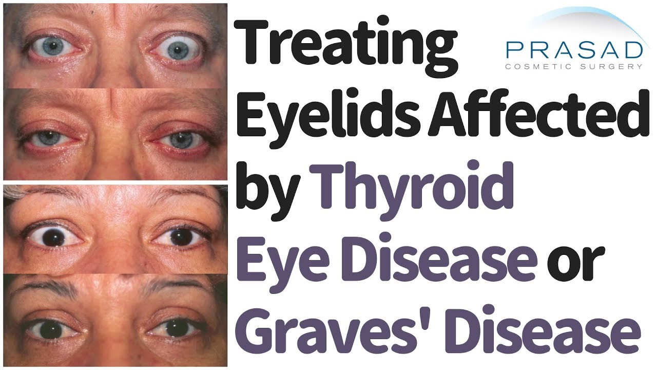 How And When To Treat Eyelids Affected By Graves Disease Thyroid