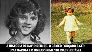 A história de David Reimer: O gêmeo forçado a ser uma garota em um experimento inacreditável