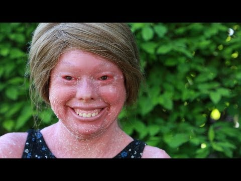 Teenager Suffering From Rare Harlequin Syndrome