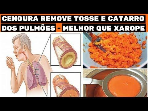 🔴 Beba isto para eliminar o catarro, gripe e congestão nasal em 24 horas - MELHOR QUE XAROPE !!!
