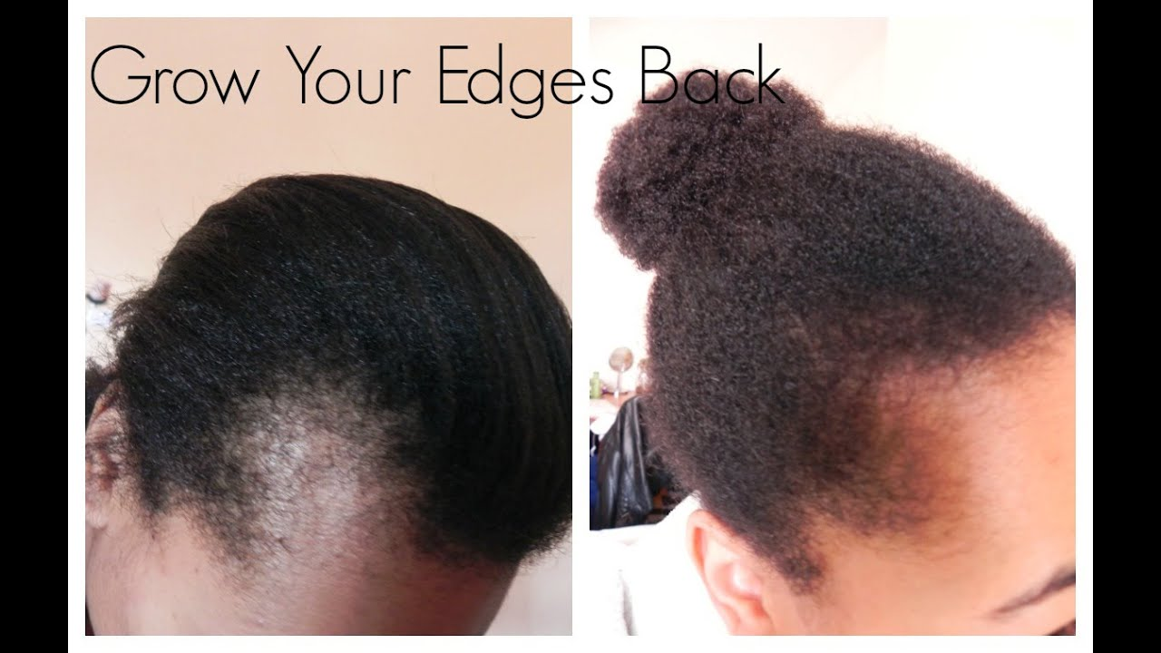 Get Those Edges Back How I Grew Out My Edges And Bald