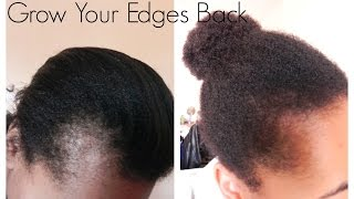 Repeat youtube video Get Those Edges Back | How I Grew Out My Edges And Bald Spots
