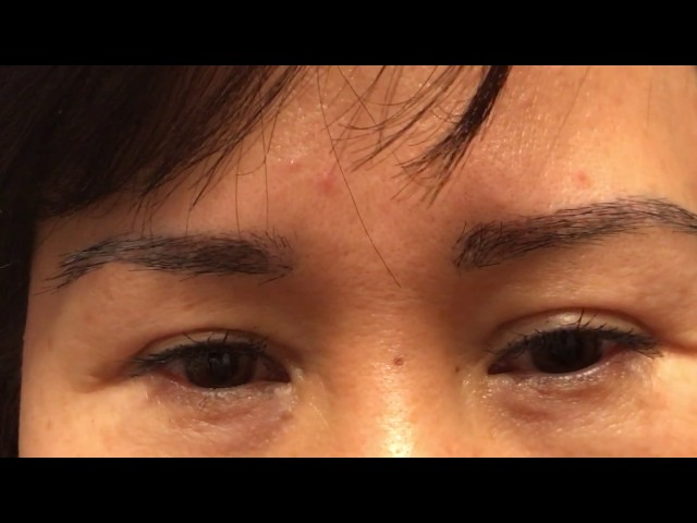 Asian Eyebrow Hair Transplant Close-Up + How to Trim the Eyebrows