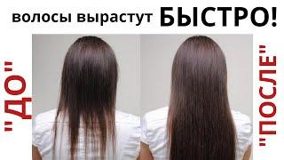 БЫСТРО ОТРАСТИТЬ ДЛИННЫЕ ВОЛОСЫ Сильное средство для роста волос 2021 Касторовое масло для волос