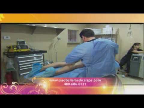 liposuction at ciao bella