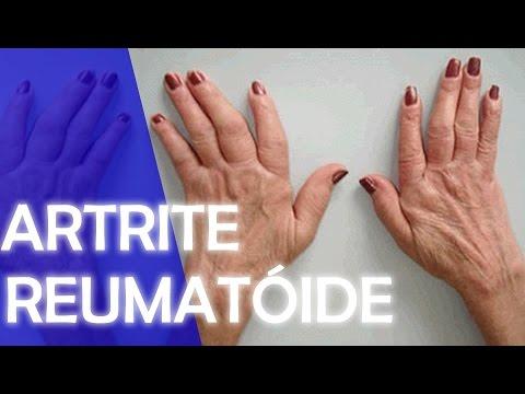 Vitamine D in reumatoïde artritis | Reuma Patienten Vereniging Arnhem e.o.