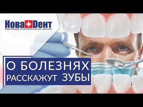 👅 О каких заболеваниях можно судить по языку и запаху изо рта. Диагностика заболеваний по языку. 12+