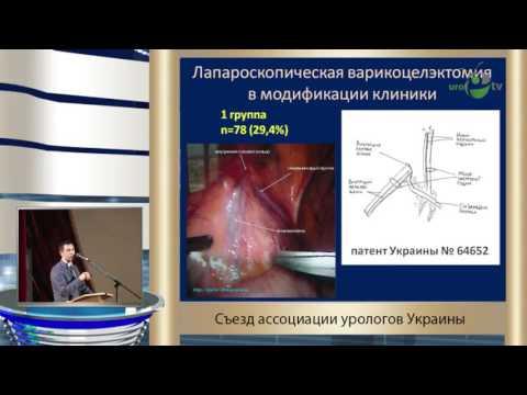 Шамраев С Н - Лапароскопическая варикоцелэктомия при различных типах варикоцеле у мужчин репродукт