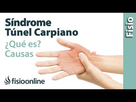 Síndrome del túnel carpiano - Qué es, causas, síntomas y tratamiento