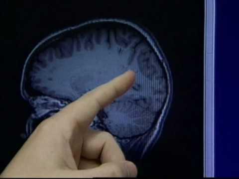 Autism Brain Waves - NJN News Healthwatch Report