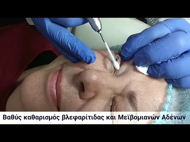 Βαθύς καθαρισμός βλεφαρίτιδας και Μεϊβομιανών Αδένων