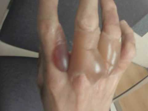 2nd Degree Burn on the hand