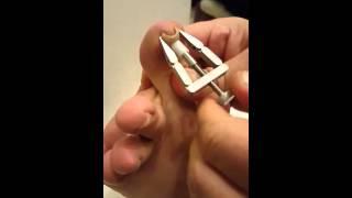 Batık Tırnak Nasıl Düzeltilir ? (Batık Tırnak Düzeltme Aleti Tanıtımı )