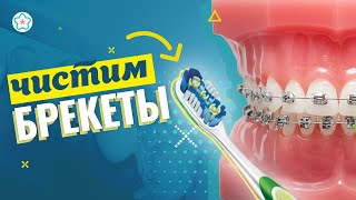 ПРАВИЛЬНАЯ ЧИСТКА БРЕКЕТОВ ♥♥♥ зубная нить, ершики, щетки, воск
