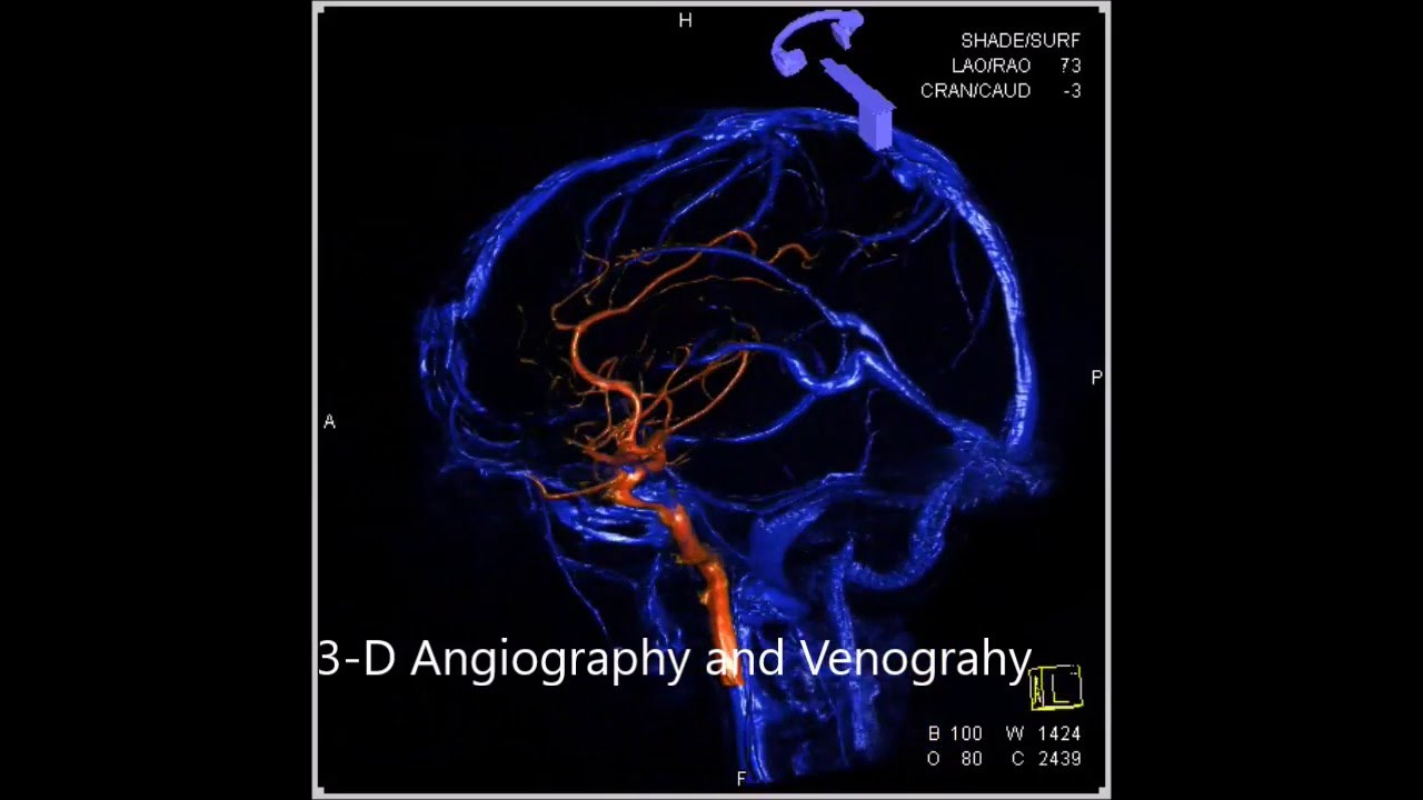 3-D ROTATIONAL CEREBRAL ANGIOGRAPHY - YouTube