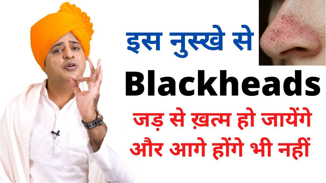 Blackheads जड़ से खत्म करने के लिए || Sanyasi Ayurveda ||