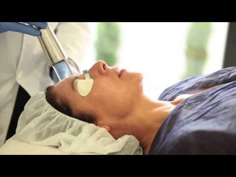 Tratamiento Laser co2 fraccionado, Carmen Sarmiento Sevilla