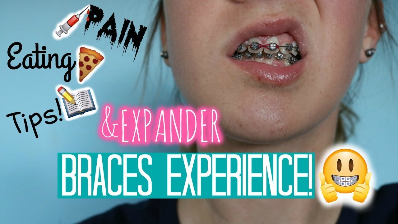 how to turn your expander