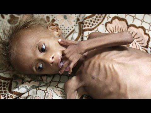 1.500 de niños desnutridos por la cruenta guerra de Yemen