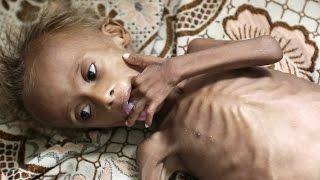 1.500.000 de niños desnutridos por la cruenta guerra de Yemen