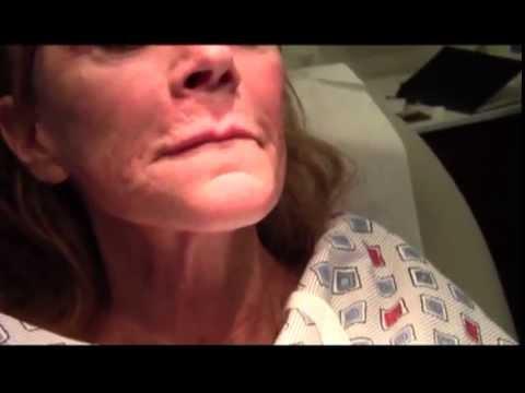 "The ""Liquid Face-Lift"" - The Non-Invasive Refresher"
