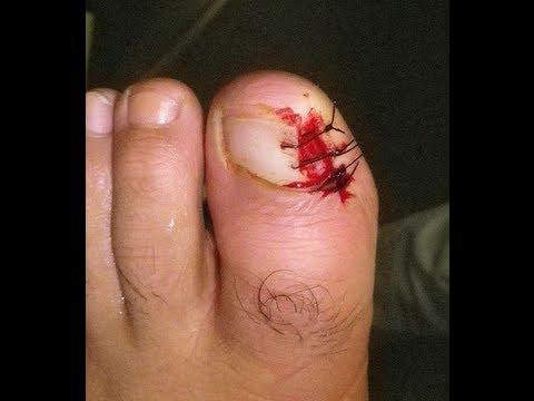 El tratamiento de las uñas al hongo