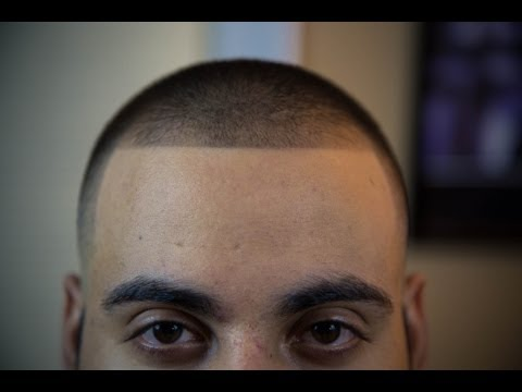 Bald fade with 2 on top