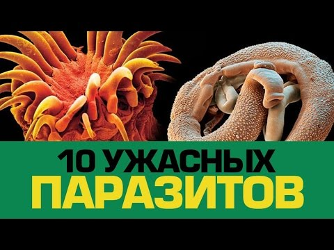 10 Ужасных ПАРАЗИТОВ, которые могут жить в тебе