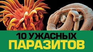 видео Самые ужасные паразиты, опасные для человека