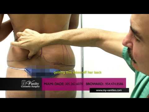 Liposuction Miami Process: what is liposuction surgery Fort Lauderdale Vanity Cosmetic Surgery Video