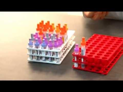 - sang dans les urines comment le sang est-il analysé ?