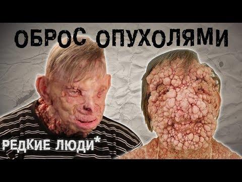 Человек с Нейрофиброматозом L The Люди