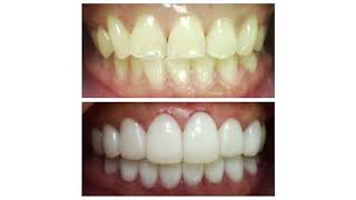 Best Dental Crowns At Florida Dental Care of Miller
