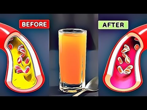 THE FASTEST WAY To Unclog Your Arteries From Cholesterol Naturally | Reduce Cholesterol Fast